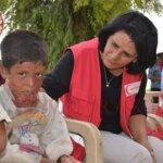 Consegnati aiuti per terapia specialistica a bambino gravemente ustionato di Amuda