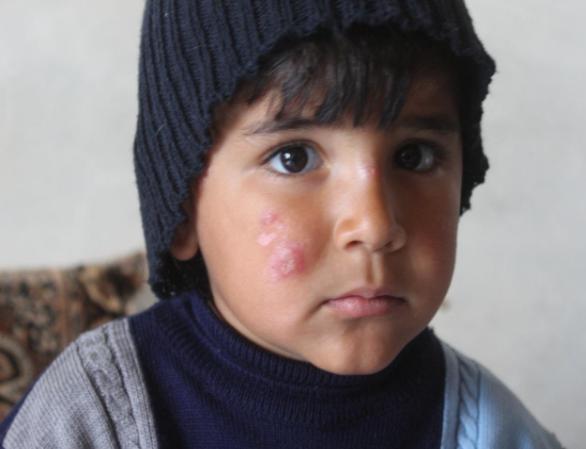Leishmaniosi a Al-Shahba – Campagna di Aleppo